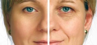 retrase el envejecimiento con colageno hidrolizado